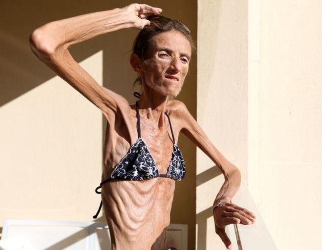 Жуткая история болезни Валерии Левитин (7 фото)