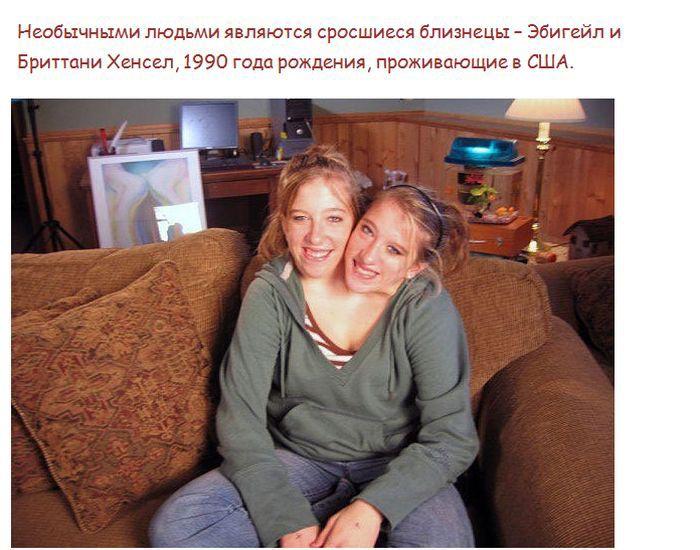 Самые необычные истории сросшихся близнецов (5 фото)