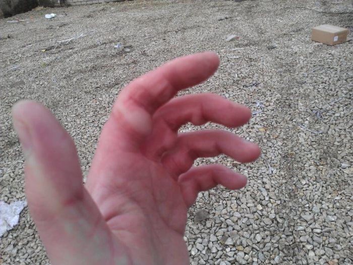 Не забывайте перчатки, если несете тяжелые кульки на морозе (3 фото)