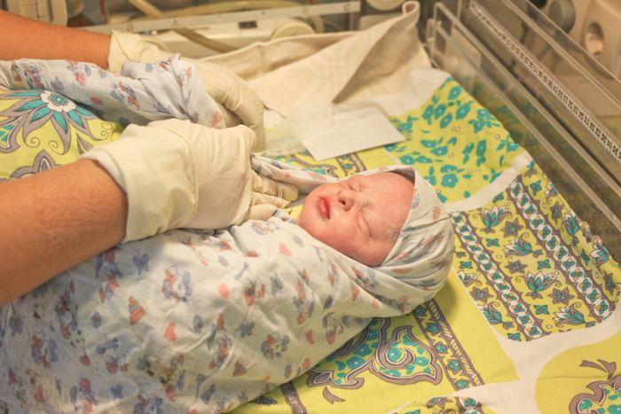Как делают кесарево сечение при рождении ребенка (35 фото)