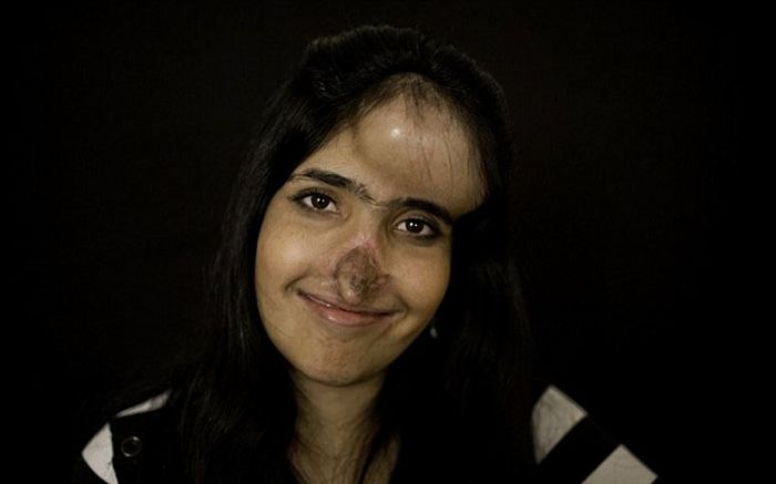 Аиша Мухаммадзаи с новым лицом (10 фото)