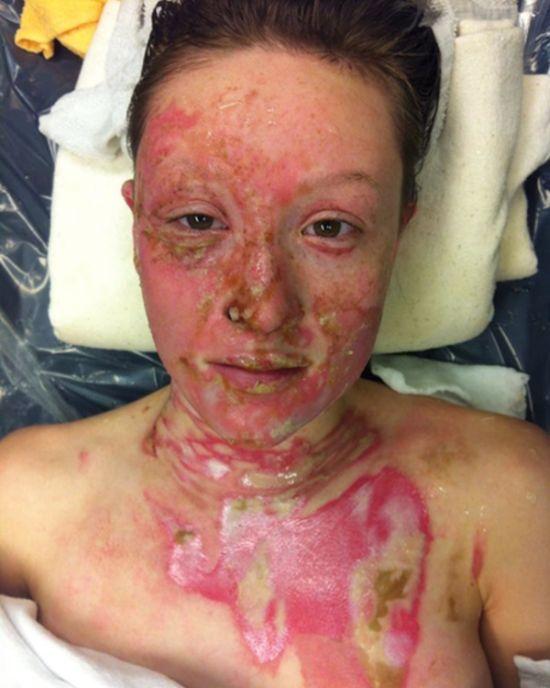 Девушка обгорела из-за опасного алкогольного коктейля (7 фото)