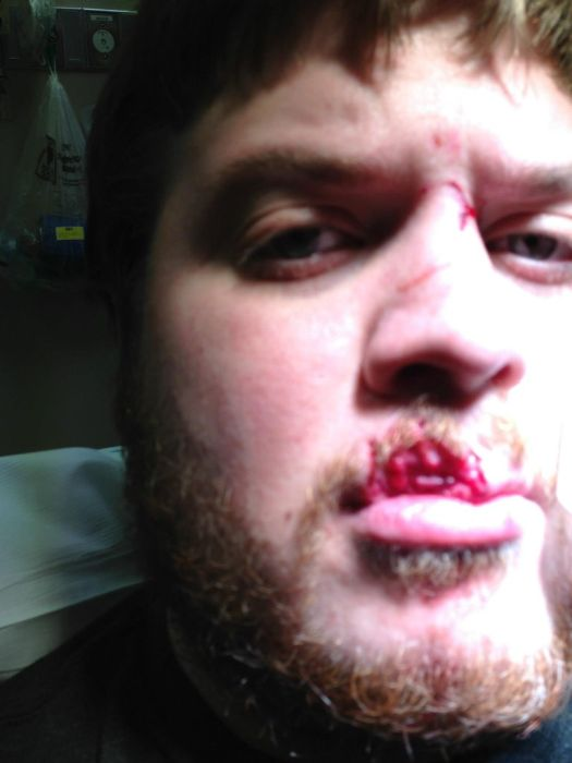 Восстановление губы, откушенной собакой (24 фото)