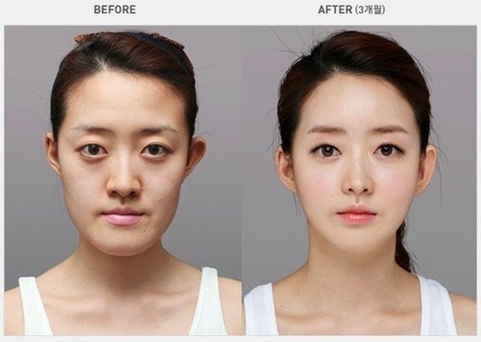 "Пластическая хирургия в стиле ""до и после"" (31 фото)"