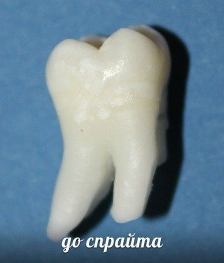 ТОП-10 напитков, которые разрушают наши зубы (10 фото)
