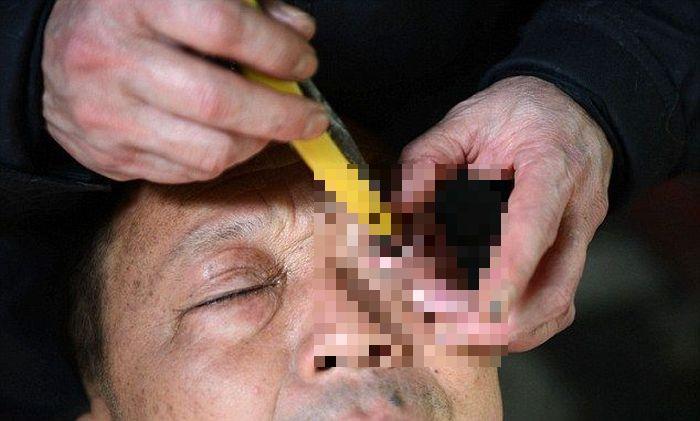 """Китайская процедура """"бритья"""" глаз (4 фото)"""