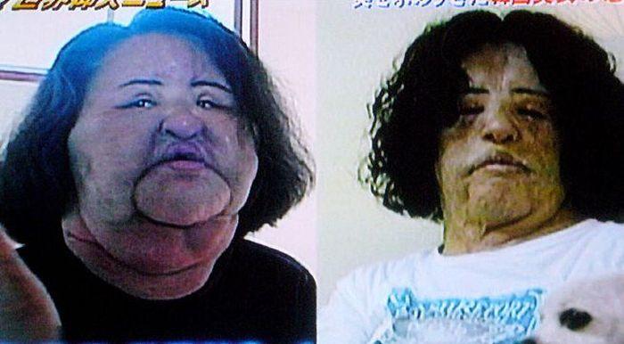 Женщина изуродовала себя, введя себе под кожу растительное масло (4 фото)