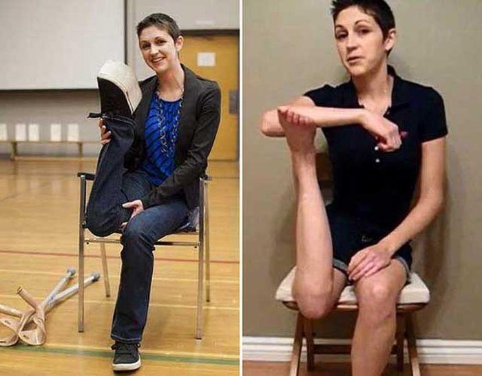 Необычная способность девушки после рака костей (2 фото + видео)