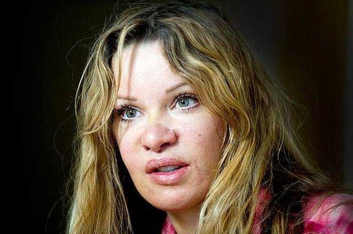 Алисия Дюваль решила заново корректировать свою внешность (5 фото)