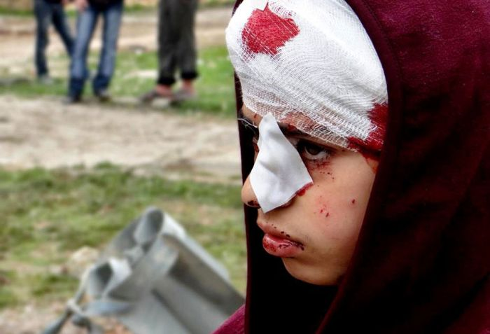 Suriye'de Savaşla Birlikte Yaşam(36 Fotograf)