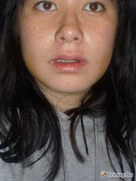 Девушка получает лицо своей мечты (15 фото)