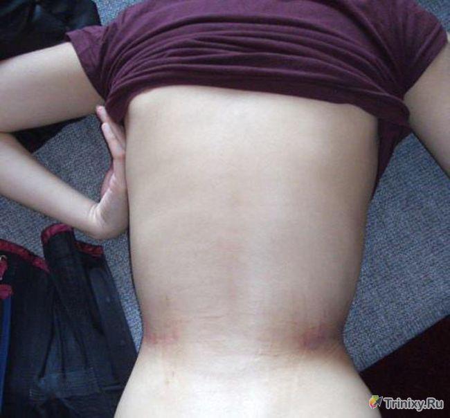 Девушка уменьшила диаметр своей талии до 40 сантиметров (32 фото)