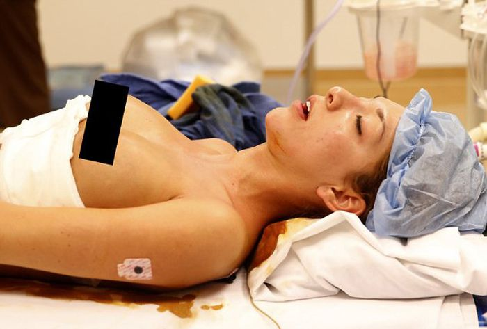 Как делают силиконовую грудь (20 фото)