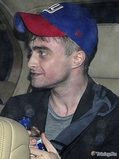 """Гарри Поттер переборщил с """"магическими"""" таблетками (5 фото)"""