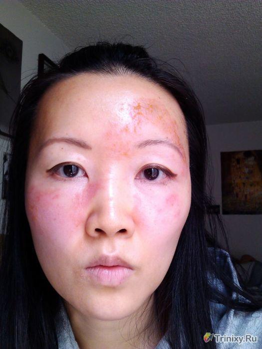 Жуткие последствия самостоятельного диагностирования заболевания (20 фото)