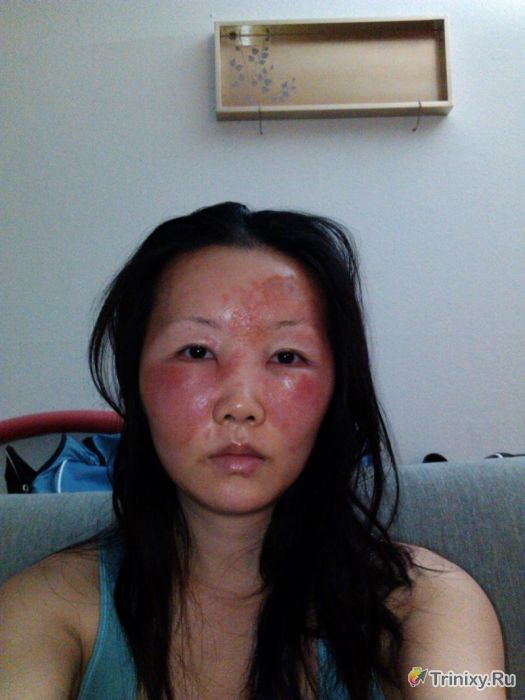аллергия на девушку