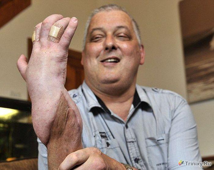 Невероятная операция в сфере трансплантологии (7 фото)