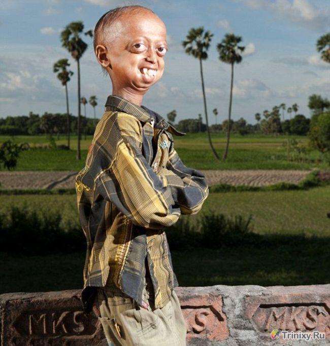 Мальчик с телом 110-летнего старика (6 фото)
