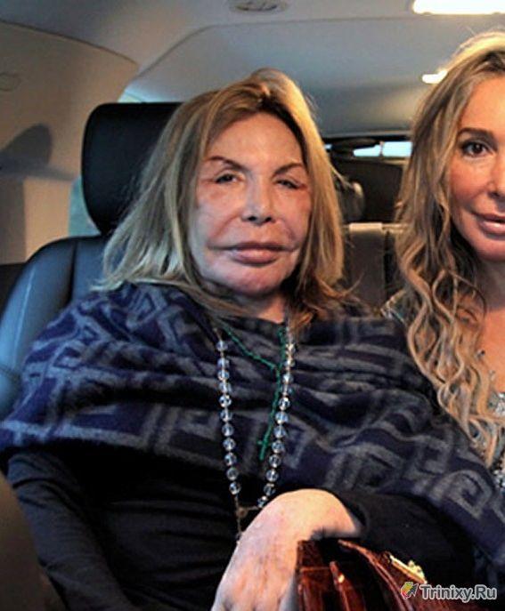 Эльза Паттон - жертва пластической хирургии (28 фото)