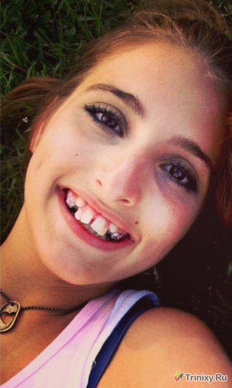 Как изменилась девушка после операции на челюсти (2 фото)
