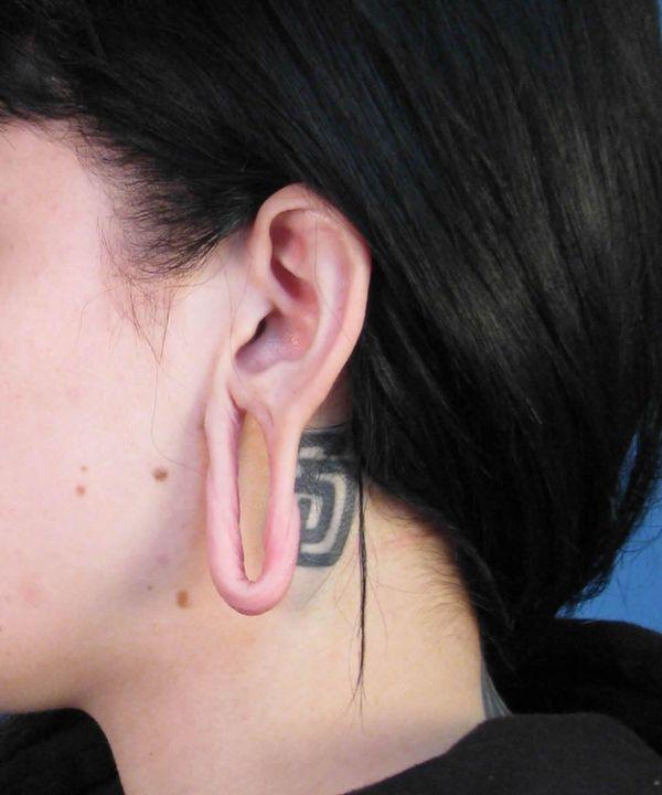 Последствия каналов в ушах (10 фото)
