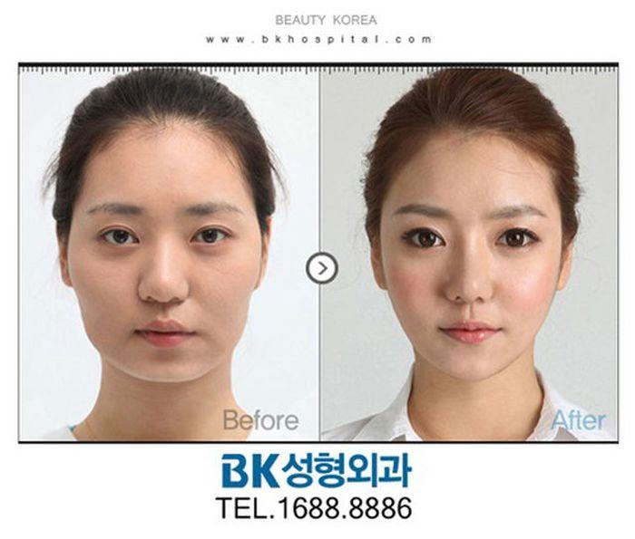 """Пластическая хирургия в стиле """"до и после"""". Часть 2 (61 фото)"""