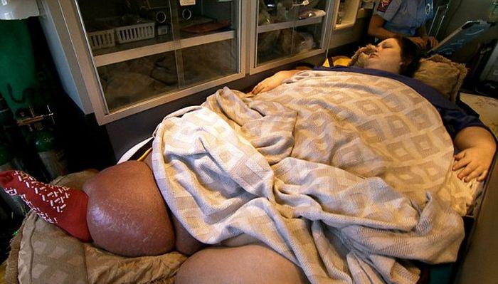 Самой тяжелой женщине в мире удалось похудеть (7 фото)