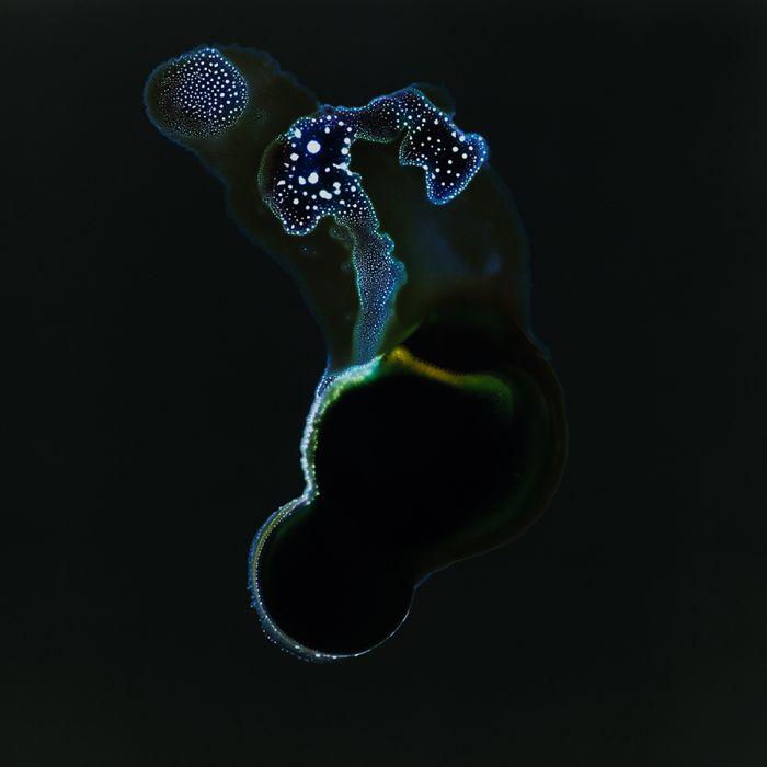 Наркотические средства под микроскопом (14 фото)