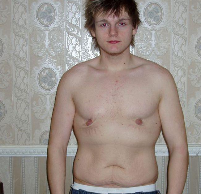 Парень до и после похудения на 76 килограмм! (7 фото)