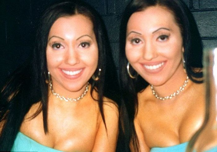 Сестры-близняшки - жертвы пластической хирургии (24 фото)