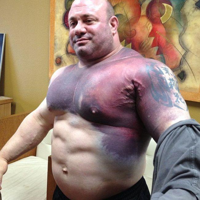 Последствия разрыва мышц во время жима штанги (2 фото + видео)