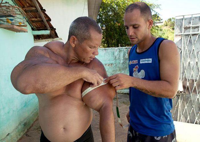 Очередная жертва синтола: бразильский Халк (14 фото)