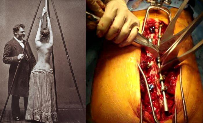 """Прогресс медицины в стиле """"тогда и сейчас"""" (13 фото)"""