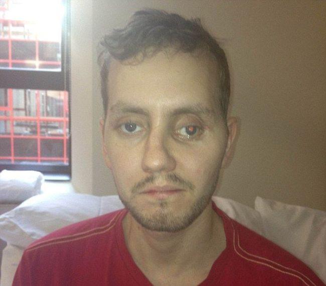 Необычная операция на черепе жертвы аварии (5 фото)