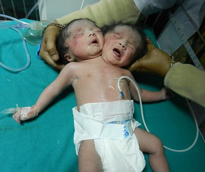 В Индии родился ребенок с двумя головами (3 фото) » Триникси