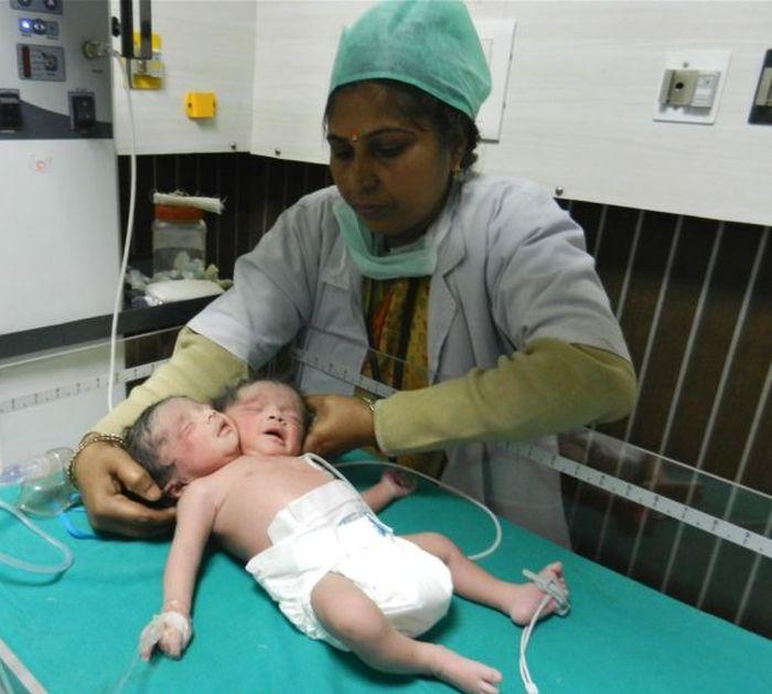 В Индии родился ребенок с двумя головами (3 фото)