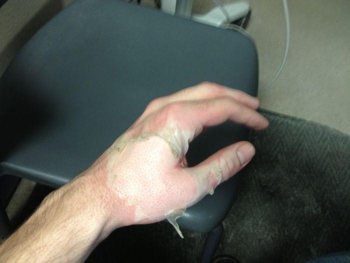 Последствия ожога кипящим маслом (9 фото)
