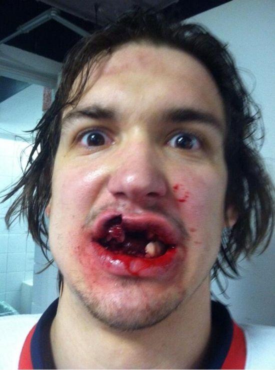 Прямое попадание хоккейной шайбы в лицо (2 фото)
