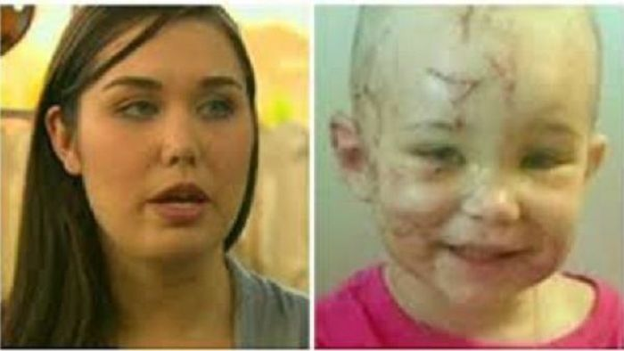 Молодая мама откусила ухо питбуля, защищая своего ребенка (4 фото)