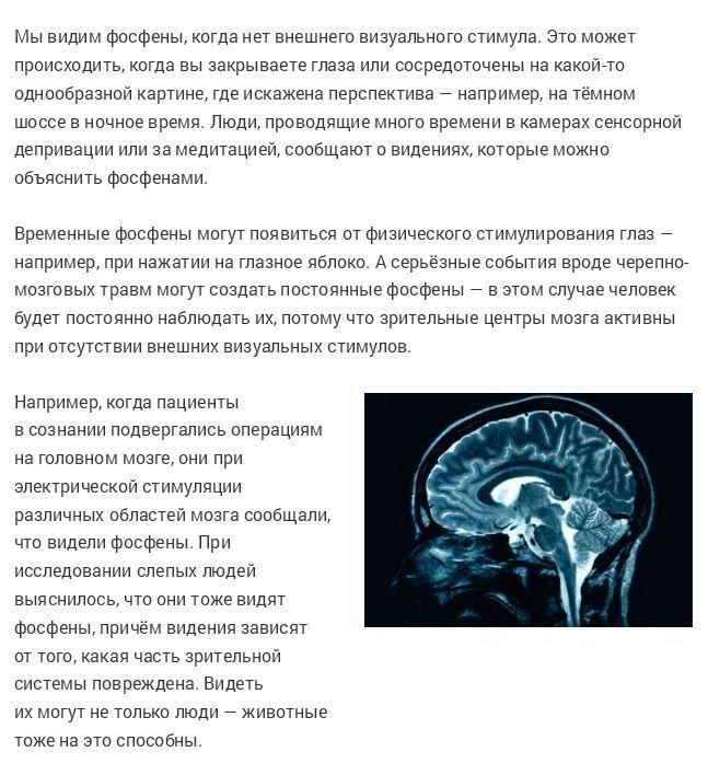 Удивительные возможности человеческого мозга (19 фото)