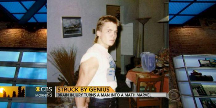 Травма мозга превратила парня в математического гения (3 фото + текст)