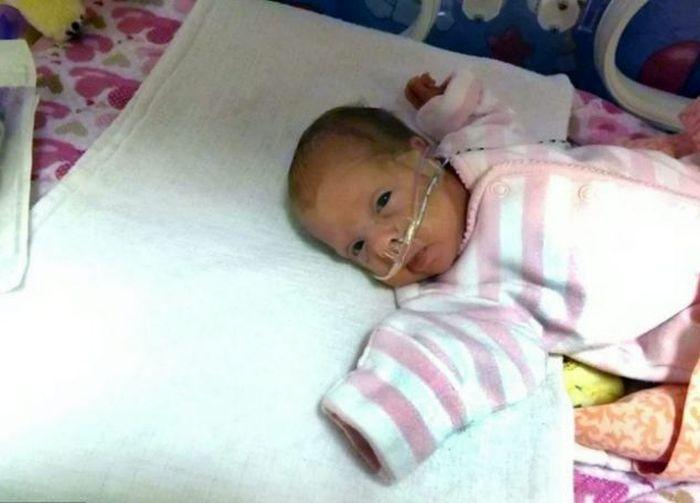 Врачи спасли 24-недельного ребенка (7 фото)