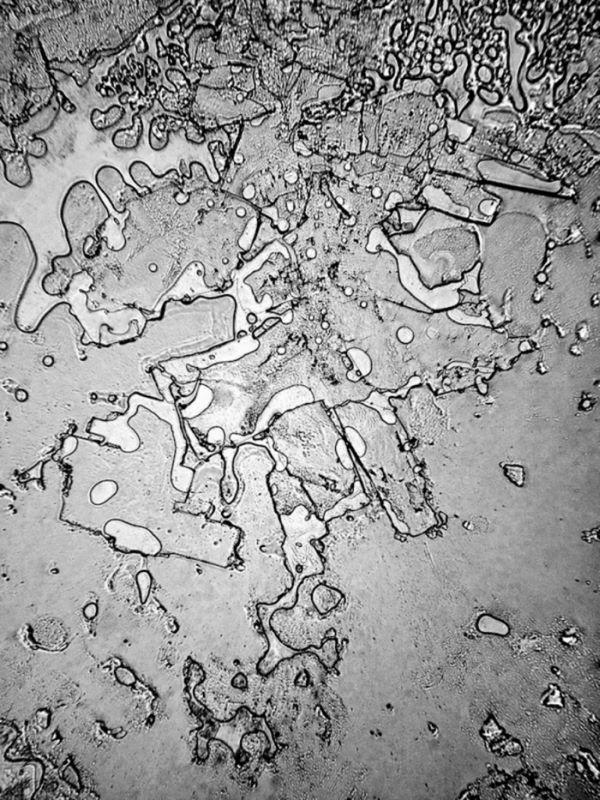 Структура человеческих слёз под электронным микроскопом (7 фото)