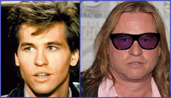 Celebrities That Didn't Age Well (28 pics)