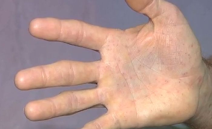 Безобидный опоссум оказался дикобразом (5 фото)