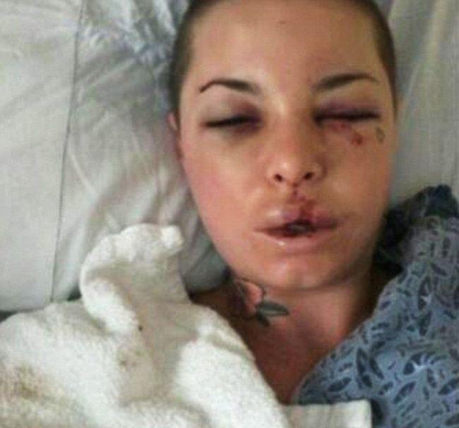Порнозвезда после разборок с гражданским мужем - бойцом MMA (8 фото)