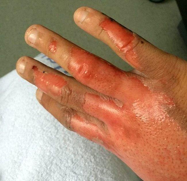 Серьезные последствия приготовления ракетного топлива своими руками (7 фото)