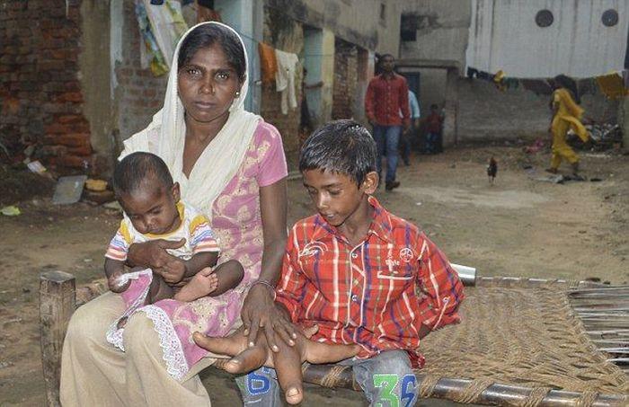 Индийский мальчик с гигантскими руками (17 фото)