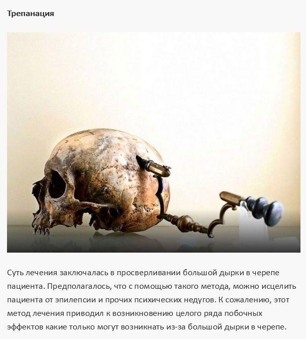 Опасные методы лечения из прошлого (12 фото)