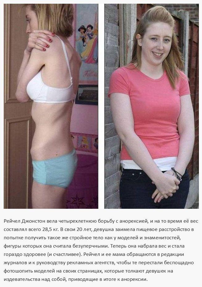 Люди, победившие анорексию (15 фото)